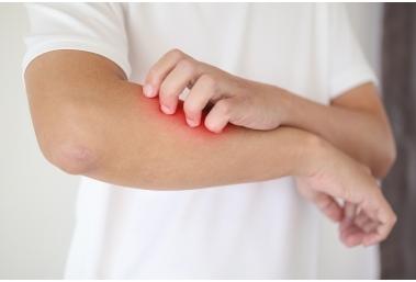 Atoopiline dermatiit ehk nahapõletik